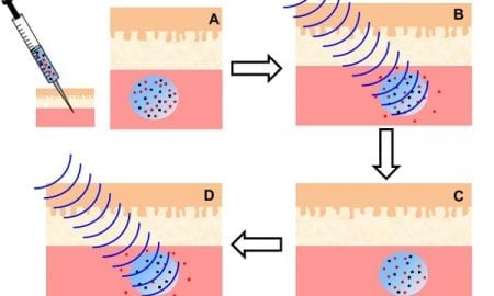 Remote controlled nanoparticles