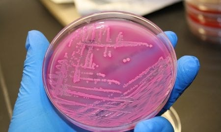 E. coli - Image courtesy of Virginia Dunn