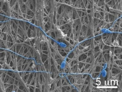 Electrically spun fabric offers dual defense against pregnancy, HIV