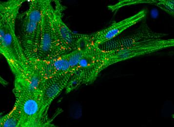 New materials for heart tissue regeneration