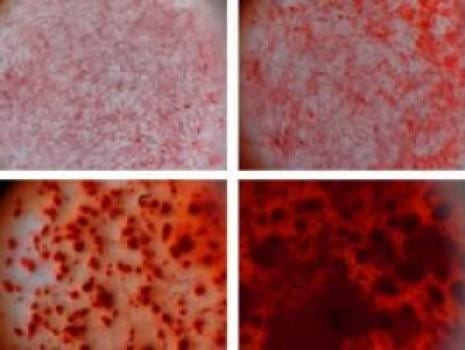 Using Clay to Grow Bone Cells