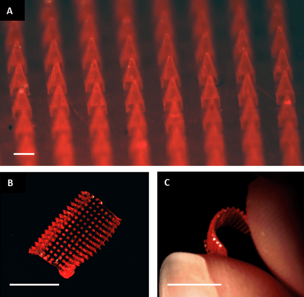 Dissolvable microneedle patches for transdermal drug delivery