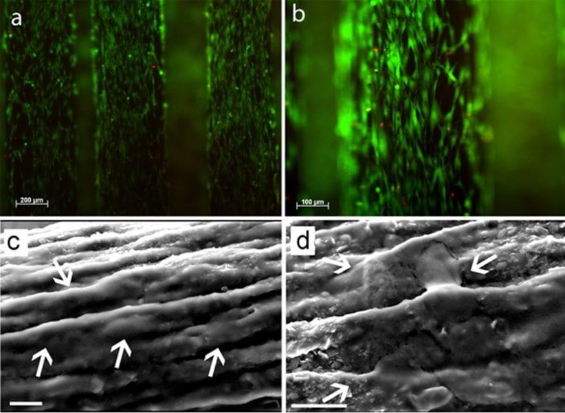Myoblast cells growing on graphene-PLGA fibers