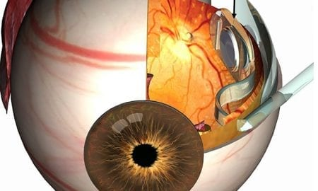 Diamond Devices for High Acuity Prosthetic Vision