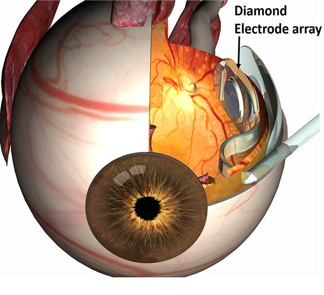 Diamonds for prosthetic vision