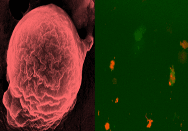 Porous Silicon Nanovaccines Combat Cancer