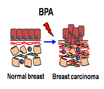 Effect of  Low-Dose Exposure to Bisphenol A on Breast Cancer