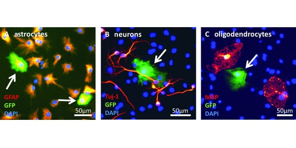 Magnetic Nanoparticle-Mediated Gene Delivery to Neural Stem Cells