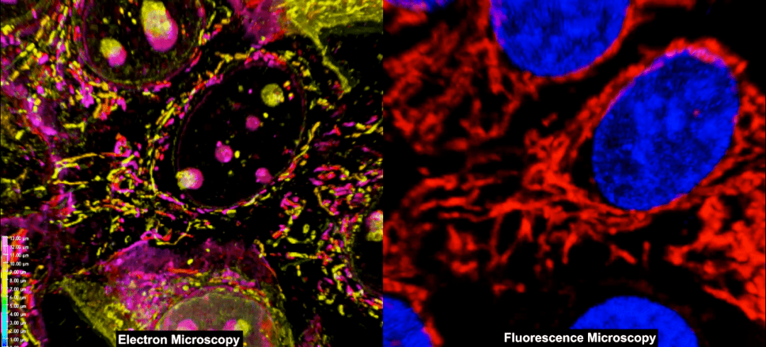Combining Fluorescence and Electron Microscopy for 3D Cell Imaging