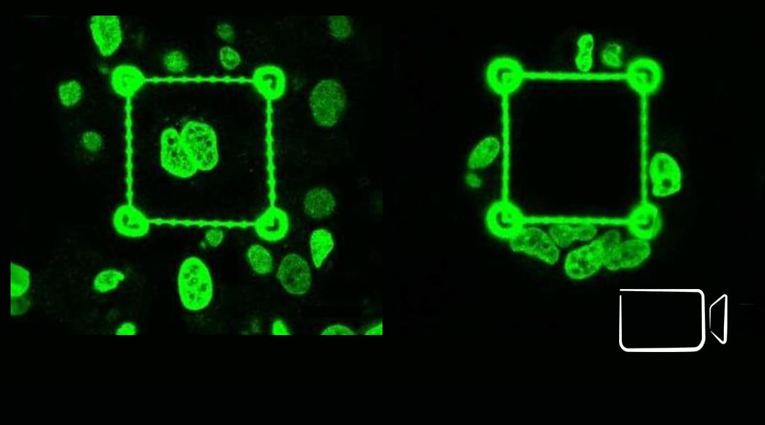 Cancer Invasion Rate Modulated by Microenvironment Stiffness