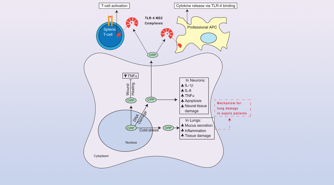 Cold-Inducible RNA Binding Protein in Cancer and Inflammation