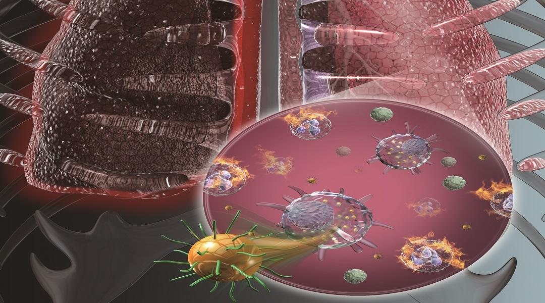 Cover Art: Osteogenesis, Anti‐Inflammatory Nanotherapeutics & Bone Regeneration