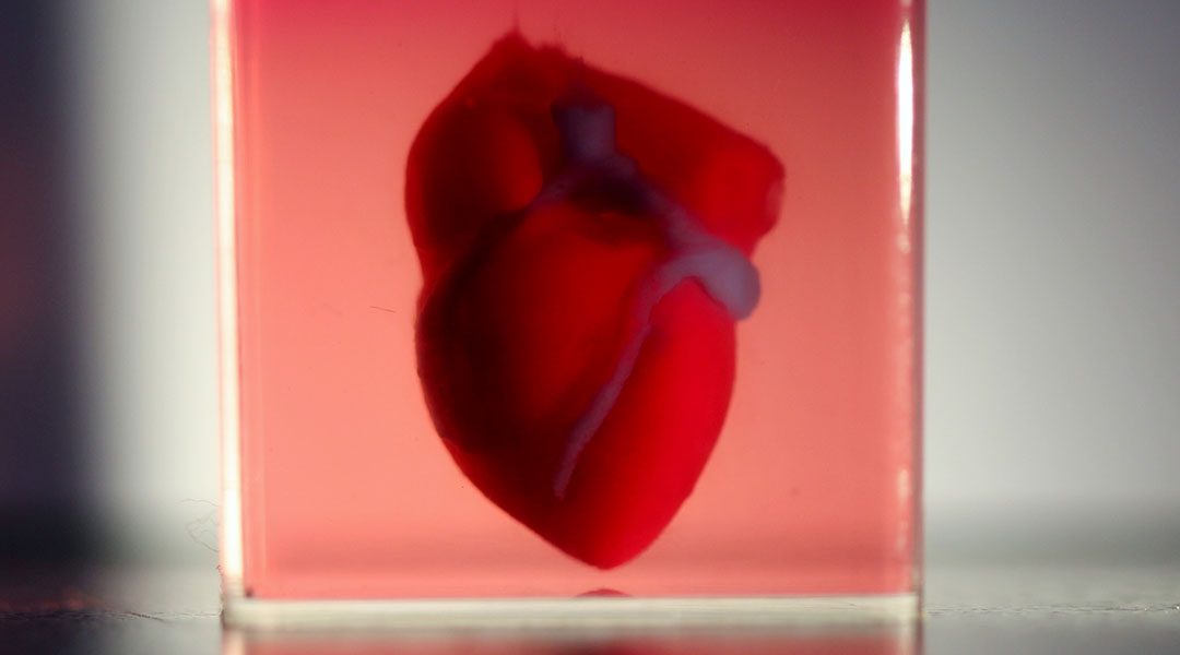 3D Printed Heart with Patient's Own Cells