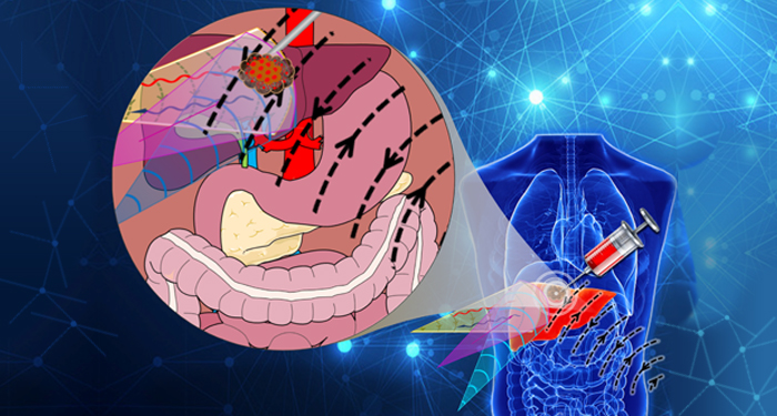Trackable Smart Drug Delivery System for Cancer Treatment