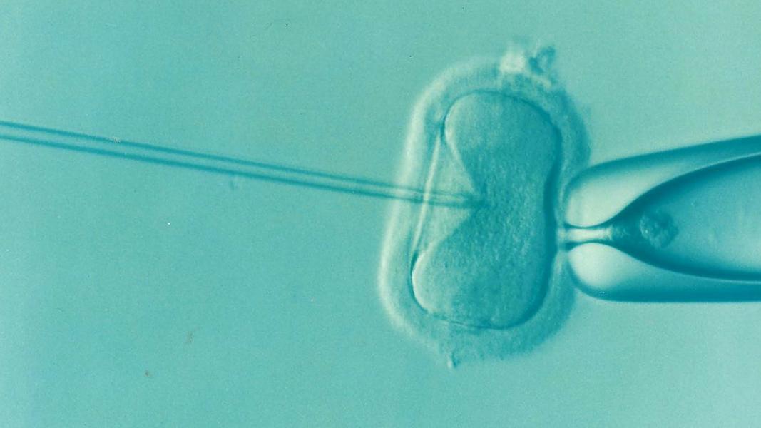 Assessing the Fertility of Sperm