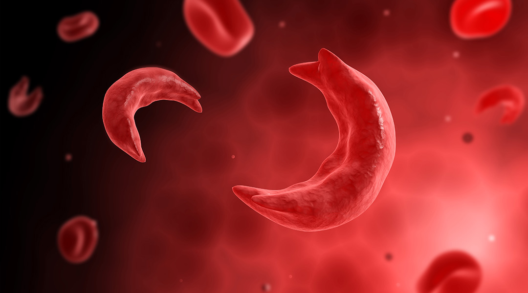 The first CRISPR gene therapy to cure sickle-cell disease
