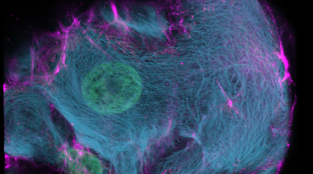CRISPR-HOT: A new tool to visualize cells