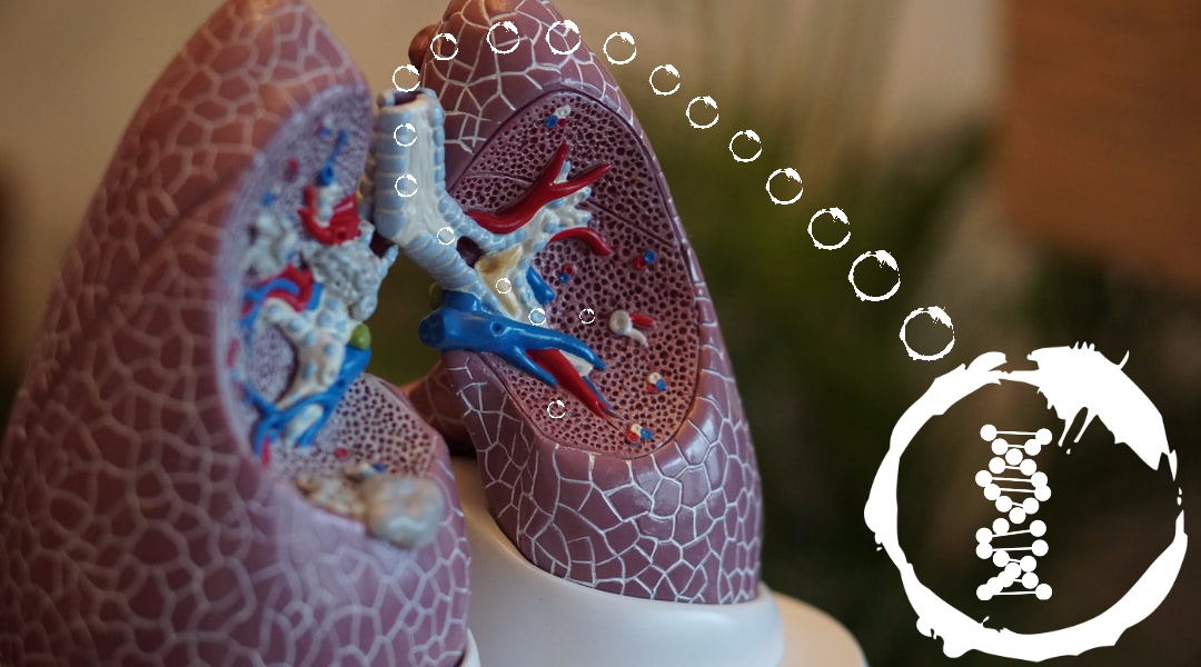A new, inhaled siRNA therapeutic option for asthma