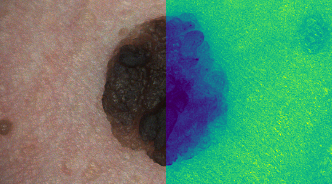 Detecting skin cancer using hyperspectral images