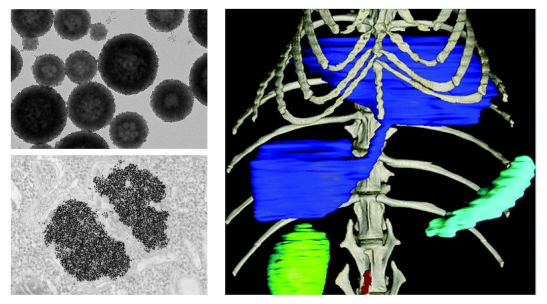 Combining nanoparticles with new X-ray technologies could revolutionize imaging diagnosis