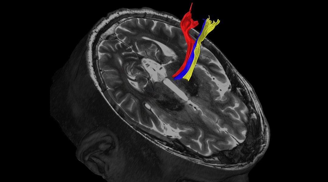 Improving treatment of Parkinson's with better brain maps