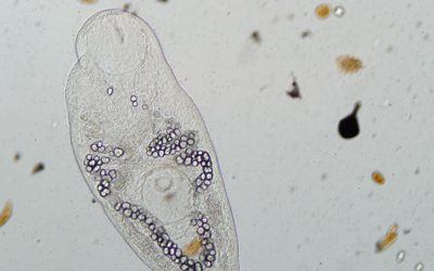Why it's important to save parasites