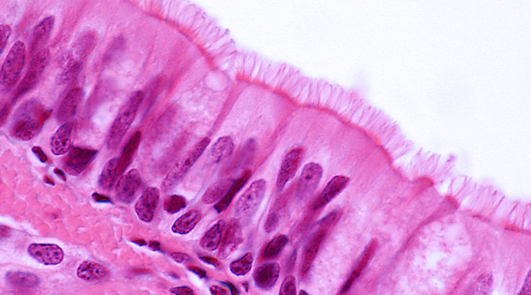 Treating tracheal defects using flexible polymeric biomaterials