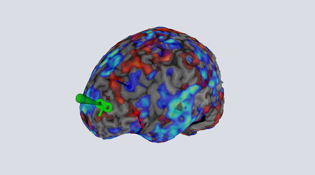 Using brain scans to personalize the treatment of depression