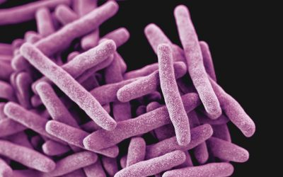 How our skin smells could be a sign of tuberculosis